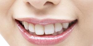 審美歯科(メタルレス)